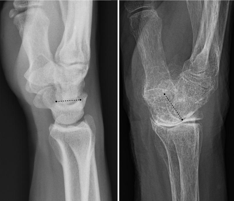 Posibles causas del dolor articular